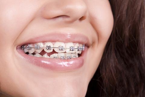 Dentalin Ağız Ve Diş Sağlığı Merkezi